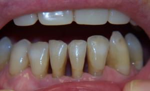gum disease successfully under control