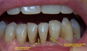 Result of gum disease
