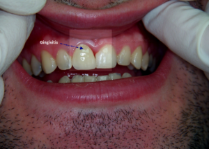 Inflammed gum